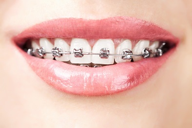 Orthodontic Hygiene Soltuions